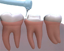Crowns are an ideal way to rebuild teeth which have been broken, or have been weakened by decay or a very large filling.