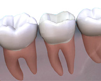 Crowns can be made of zirconia, this provides the highest aesthetics or porcelain bonded to precious metals which provides added strength as well as aesthetics. Occasionally a gold crown may be required.